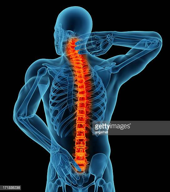 Anatomía de un hombre mostrando dolor de espalda