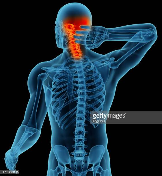 Anatomy of a man showing neck and head pain