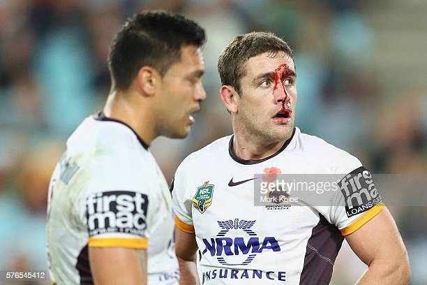 Andrew McCullough of the Broncos watches on as he bleeds from a head cut during the round 19 NRL match between the South Sydney Rabbitohs and the...