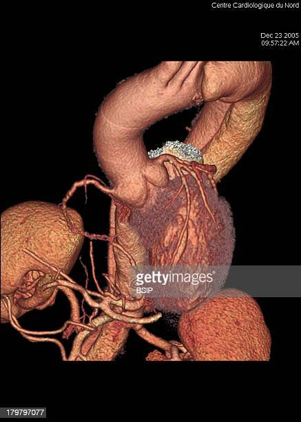 Aneurysm Of The Aorta 3D Scan Angiography Scanner 3D Aortic Aneurysm Type 2 Front View Of The Thoracic AreaDissecting Aneurysm Or Aortic Dissection...