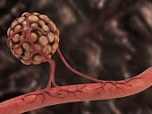 Tumor cells creating new blood veins