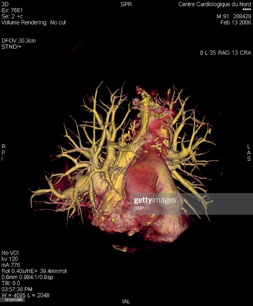 Angiography Scanner 3D Visualization Of The Heart Vena Cava Superior And Pulmonary Vascularization Arteries And Arterioles Veins And Pulmonary Venules