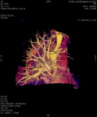 Angiography Scanner 3D Visualization Of The Vena Cava Superior And Pulmonary Vascularization Arteries And Arterioles Veins And Pulmonary Venules...