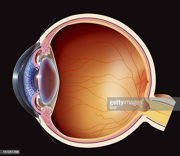 Angle Closure Glaucomaillustration Of Angle Closure Glaucoma The Trabecular Meshwork Is Blocked By The Pupil Preventing The Aqueous Humor From...
