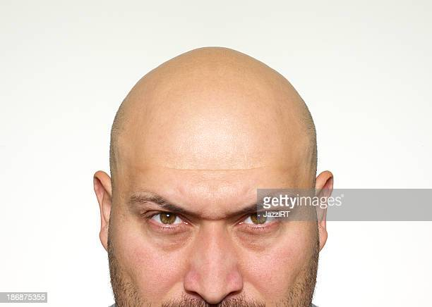 Angry bald man