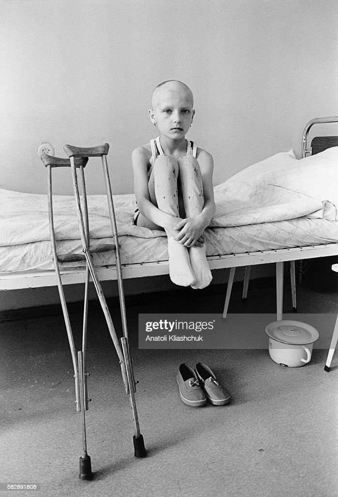 Anna aged 9 suffering from bone cancer at Borovliany Hospital She awaits amputation of her left foot