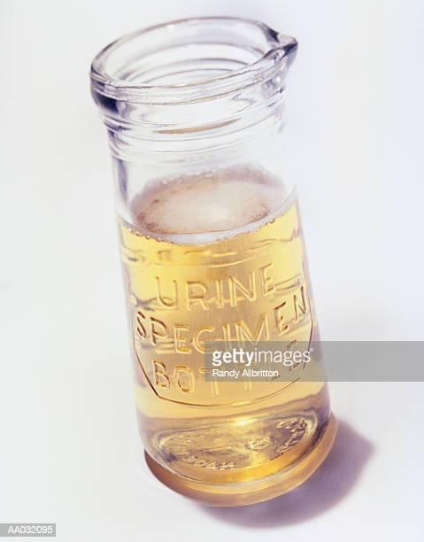 Antique Urine Specimen Bottle