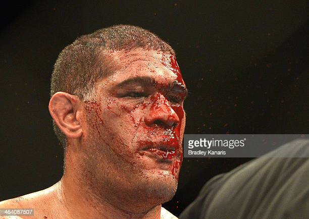 Antonio 'Big Foot' Silva's face is covered in blood during the UFC Brisbane bout between Mark Hunt and Antonio 'Big Foot' Silva of Brazil at the...