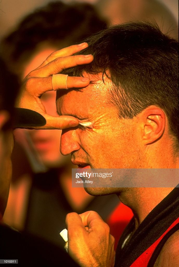 Sean Denham of the Essendon Bombers receives some attention to an eye injury during the AFL Premiership Round 5 match against the Collingwood Magpies at the MCG, Melbourne, Australia. The Anzac Day game finished with Essendon (108) defeating Collingwood (100). \ Mandatory Credit: Jack Atley /Allsport