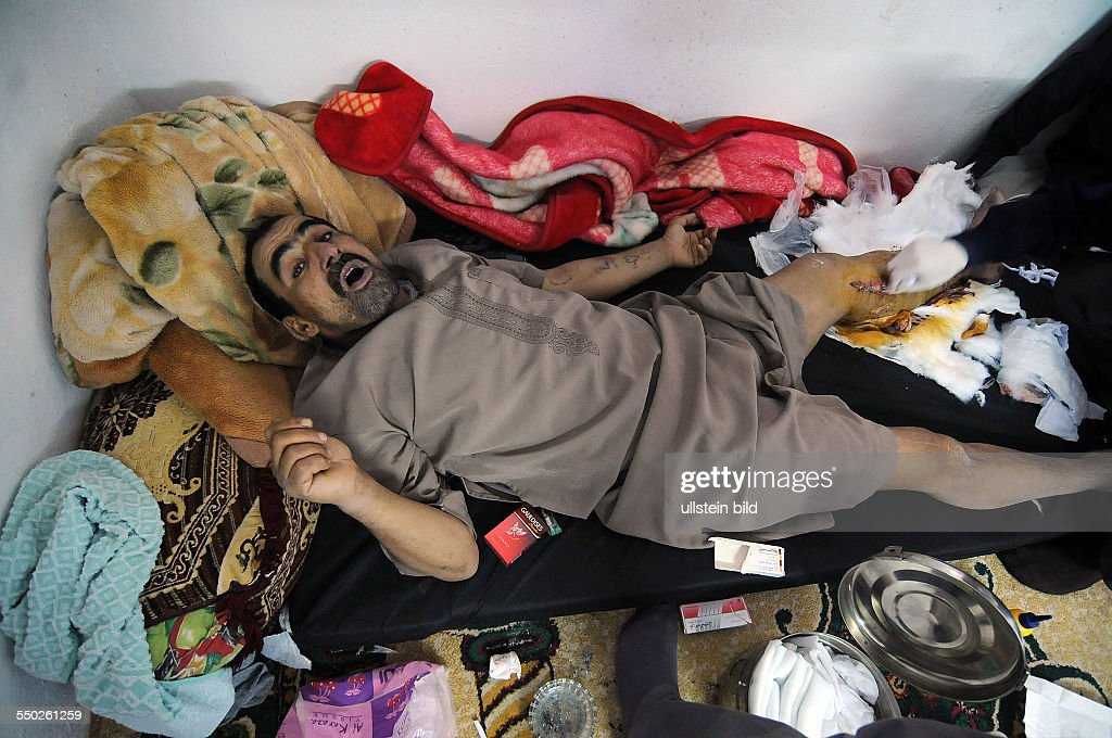 April 25 Yabrud Rif Dimashq Syria A Syrian man who was shot through the leg in Hama is being treated for gangrene inside a field hospital in Yabrud...