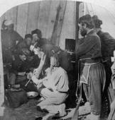 Army doctors performing an amputation in a makeshift hospital during the US Civil War c 1863
