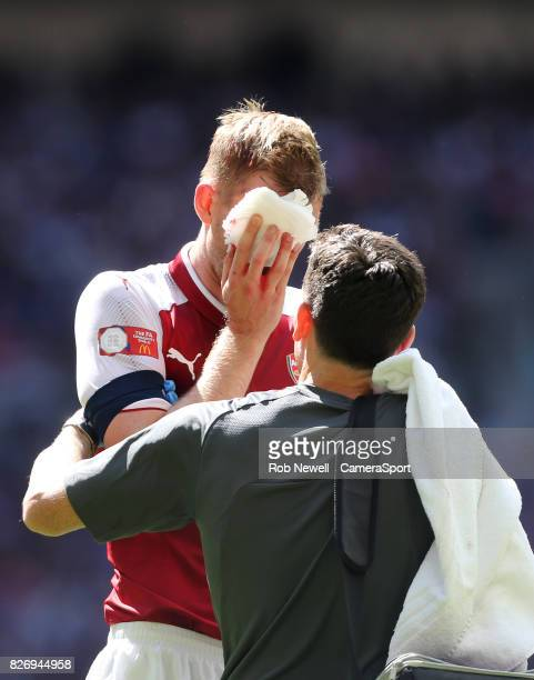 Arsenal's Per Mertesacker suffers a cut to the face during the FA Community Shield match between Arsenal and Chelsea at Wembley Stadium on August 6...