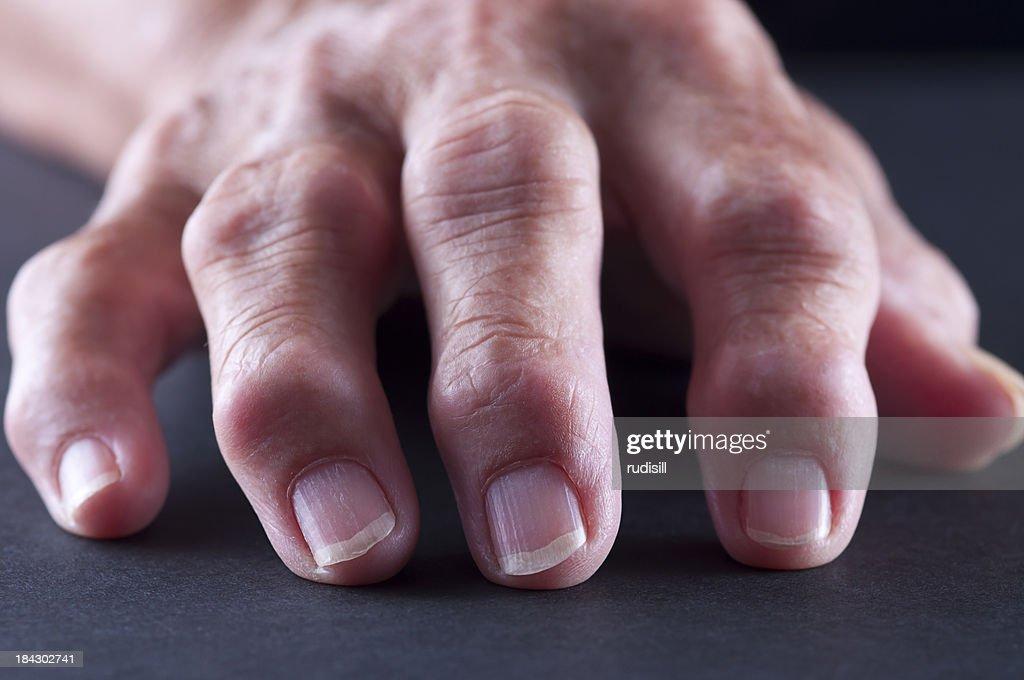 Arthitis Hand