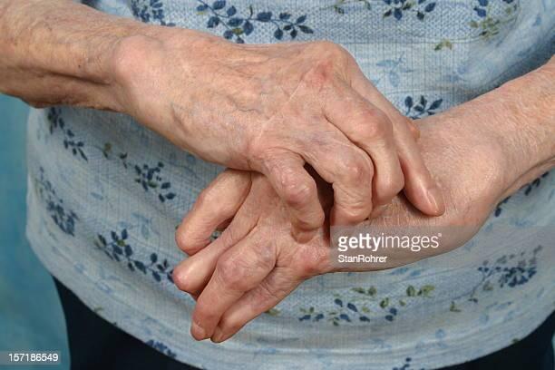 Arthritische Hands- Rheuma, Arthritis der