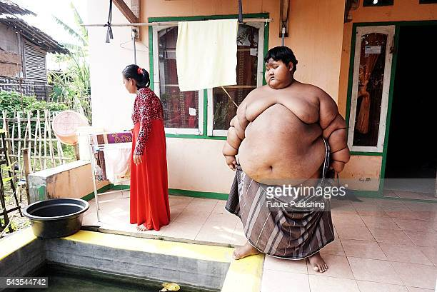 Arya Permana 10yearold who weights 192 kilograms prepare for bath in a small pool in front home on June 13 2016 in West Java Indonesia A 10YEAROLD...