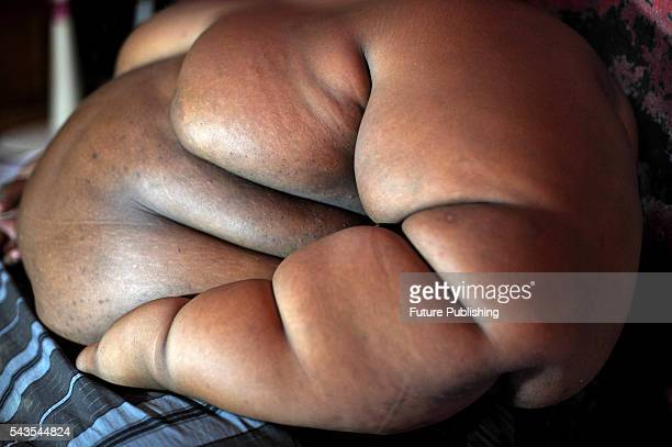Arya Permana 10yearold who weights 192 kilograms seen in his home on June 13 2016 in West Java Indonesia A 10YEAROLD from Indonesia has weighed in at...