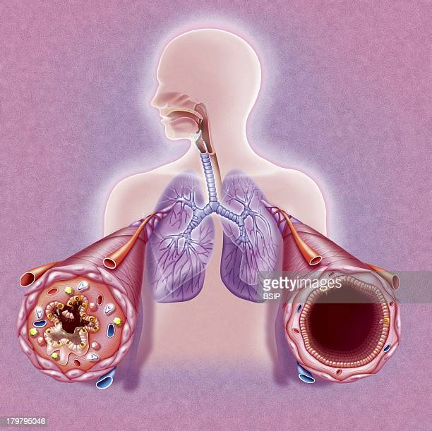 Asthma Drawing Bronchial Tubes During And After An Asthma AttackMale Silhouette With The Lungs And Bronchial Tubes Highlighted Two CloseUps Show The...