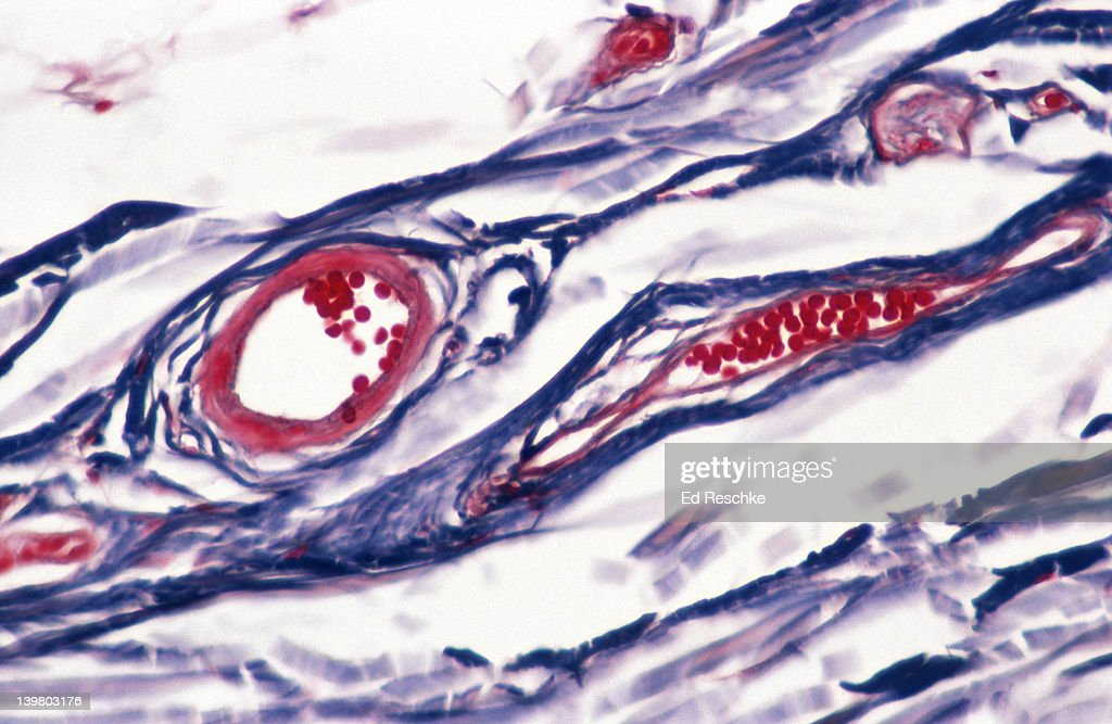 BLOOD VESSELS. SKIN; SUBCUTANEOUS LAYER, VENULES (RIGHT), ARTERIOLE (LEFT), RED BLOOD CELLS. 100X at 35mm : Stock Photo