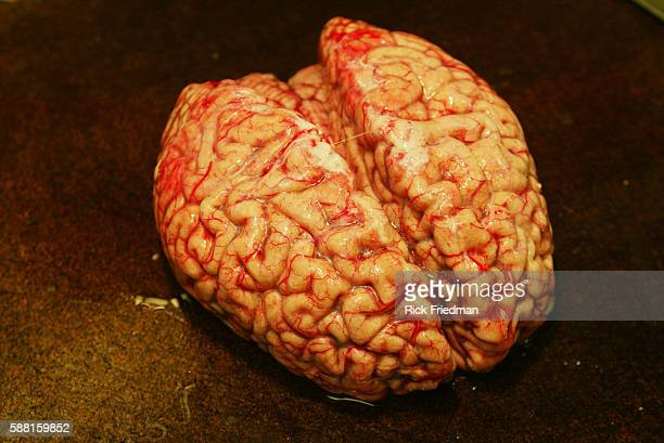 At Maclean Hospital Harvard Brain Tissue Research Center collects dissects stores and provides brain tissue which has been donated to science The...