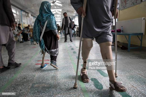 At the ICRC Orthopedic center handicapped patients practice walking on their prosthetics Every year the UN comes out with their report documenting...
