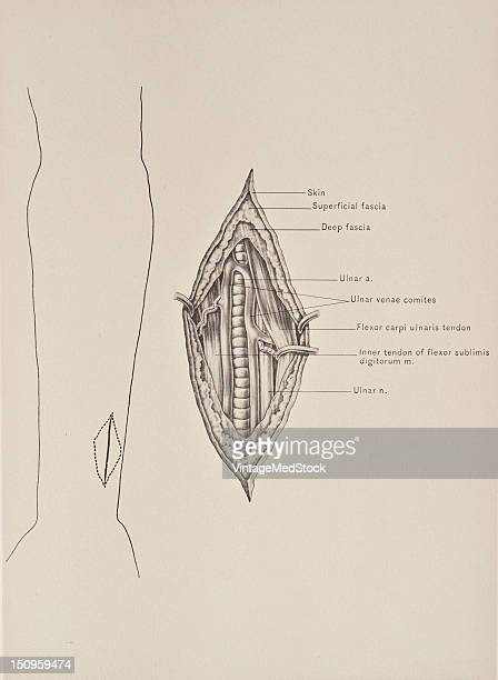 At the wrist the ulnar artery is covered by the integument and the volar carpal ligament and lies upon the Flexor retinaculum of the hand 1899 From...