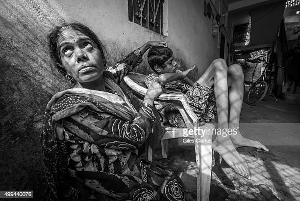 Ateeq 15 years old with his mother Shehnaz at home in the Karond neighborhood Ateeq was born to parents contaminated by a carcinogenic and mutagenic...