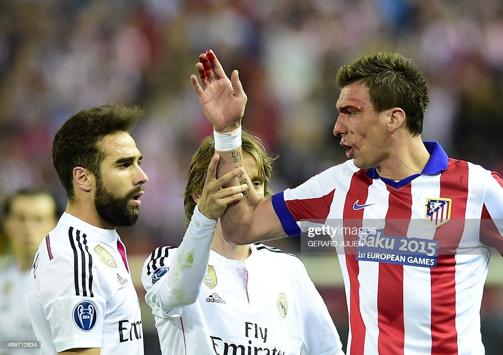 Atletico Madrid's Croatian forward <a gi-track='captionPersonalityLinkClicked' href=/galleries/search?phrase=Mario+Mandzukic&family=editorial&specificpeople=4476149 ng-click='$event.stopPropagation()'>Mario Mandzukic</a> (R) argues with Real Madrid's defender <a gi-track='captionPersonalityLinkClicked' href=/galleries/search?phrase=Dani+Carvajal+-+Spanish+Soccer+Defender&family=editorial&specificpeople=7916431 ng-click='$event.stopPropagation()'>Dani Carvajal</a> (L) after being injured during the UEFA Champions League quarter final first leg football match Atletico de Madrid vs Real Madrid CF at the Vicente Calderon stadium in Madrid on April 14, 2015.