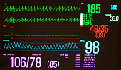 A medical monitor with a black screen showing atrioventricular node re-entrant tachycardia (AVNRT) on the green electrocardiogram lines, the arterial blood pressure on the red line and the pulse oxime