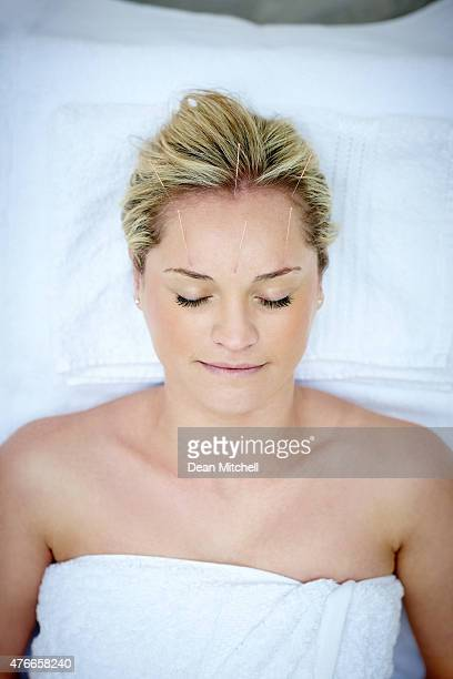 Attractive woman receiving acupuncture therapy on forehead