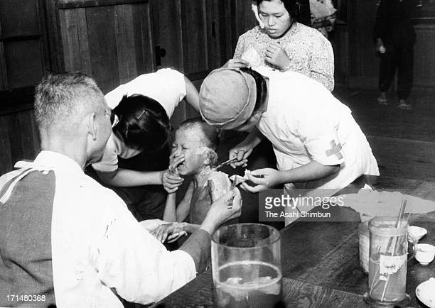 A small atomic bomb survivor cries as he receives a treatment at temporary hospital set at Shin Kozen Elementary School in August 1945 in Nagasaki...