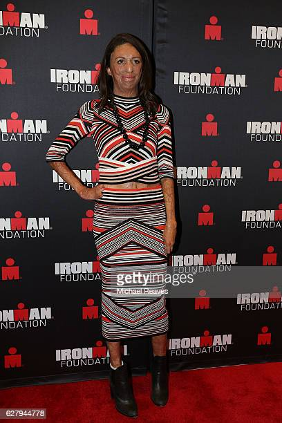 Australian triathlete motivationalist and author Turia Pitt poses for a photo on the red carpet during the 2016 IRONMAN World Championship Broadcast...