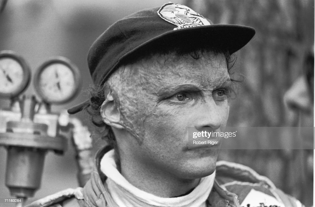 Austrian Grand Prix racing car driver <a gi-track='captionPersonalityLinkClicked' href=/galleries/search?phrase=Niki+Lauda&family=editorial&specificpeople=218060 ng-click='$event.stopPropagation()'>Niki Lauda</a> watches, late 1970s. Lauda was badly burned in a crash during the 1976 season but returned to race shortly afterwards.