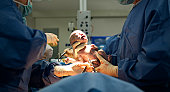 Baby being born via Caesarean Section coming out