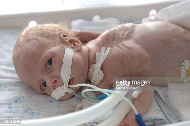 A baby born with a deformed bowel in the general hospital attached to medical equipment in the town of Rivne 500km west of Chernobyl down wind of the...