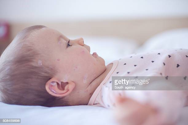 Bébé fille avec chickenpox