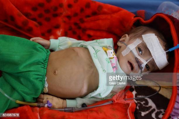 A CITY SANA A baby lies in hospital receiving treatment for severe acute Malnutrition