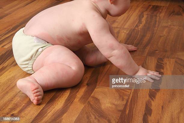 Baby with Hives