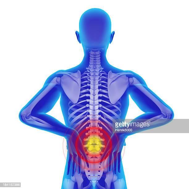 背中の痛み-クリッピングパスで分離