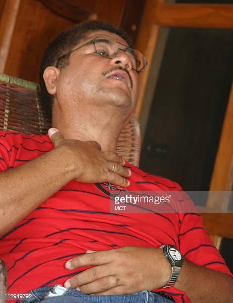 Back home near Tampico Mexico Francisco Ruiz shows a tracheotomy scar from an injury he suffered on the job near Charlotte North Carolina Ruiz fought...