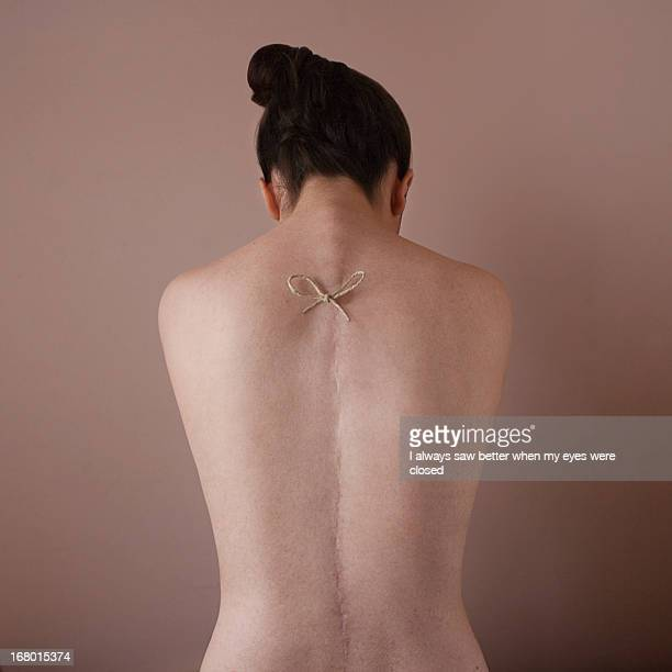 Back of a girl with a long scar on it