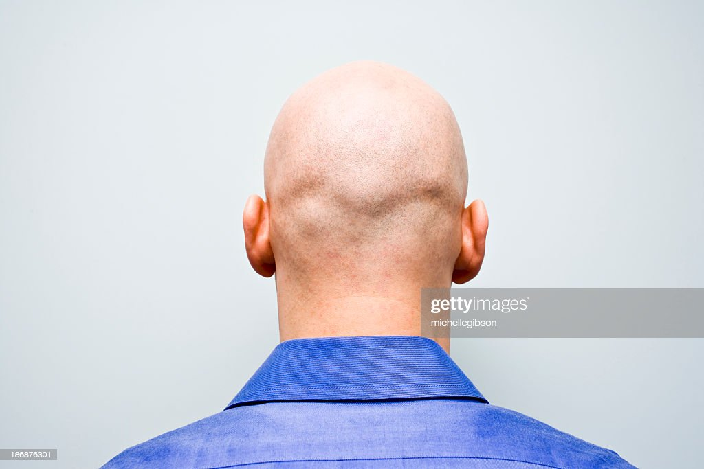 Back of man's bald head