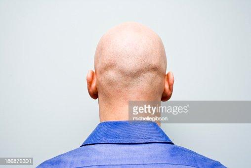 Back of man's bald head