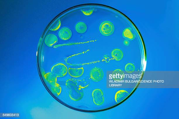 Bacteria growing in a petri dish