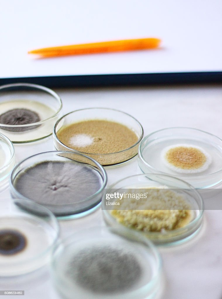 Bacterial colonies : Stock Photo