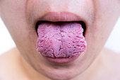 Bacterial infection disease tongue,The tongue is thrush.Tongue wound.Fissured tongue