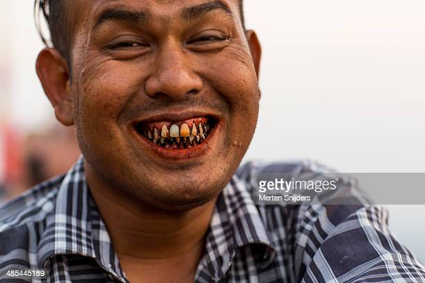 Bad teeth due to chewing tobacco