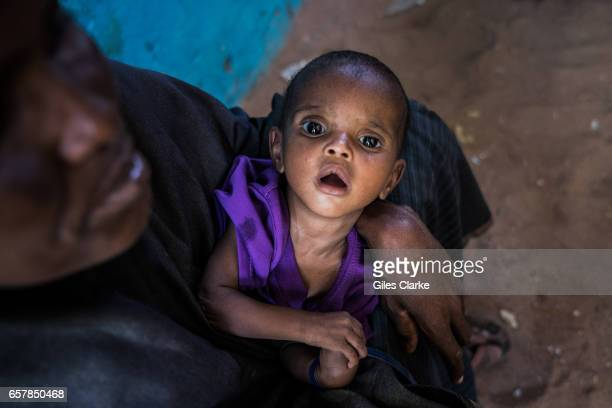 A badly malnourished baby in IDP camp in Dinsor Somalia Somalia is in the grip of an intense drought induced by consecutive seasons of poor rainfall...
