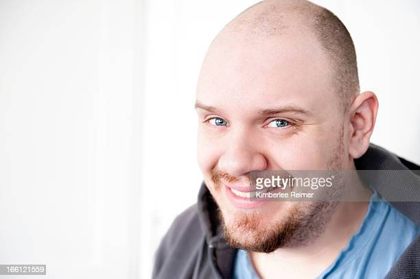 Bald Man with Blue Eyes
