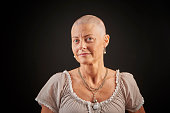 Woman up against cancer having chemotherapy, fighting for life and winning. The woman looks confident. Bald woman lost her hair during chemotherapy cure.