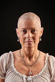 Bald woman in chemotheraphy fighting cancer